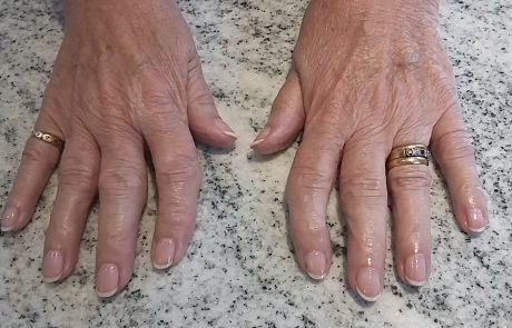 Classic French Manicure - Corsham